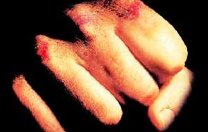 Calci e pugni ad un uomo: aggressore arrestato per lesioni personali
