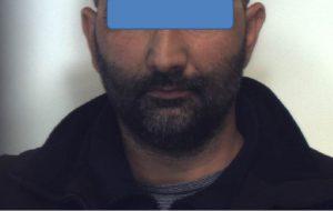 Rimuove placche antitaccheggio per rubare giubbino di marca: arrestato 44enne