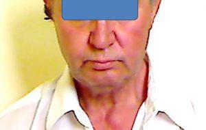 Lite tra due uomini: uno finisce in carcere, l'altro in ospedale con l'occhio destro sfregiato